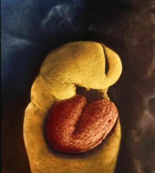 Embrionul, dupa 24 de zile. Nu are schelet, ci doar o inima care incepe sa bata dupa a 18-a zi