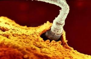 spermatozoidul norocos