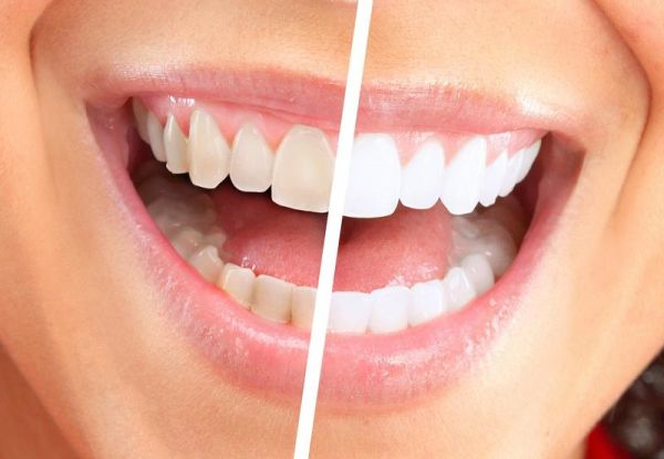 Cum se face albirea dentara