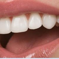 Fatete dentare din portelan